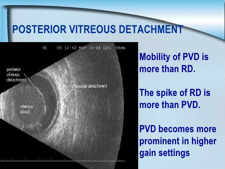 Images Posterior Vitreous Detachment Posterior Vitreous Detachment