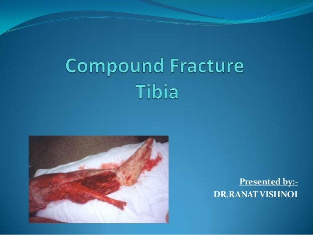 Compound Fracture Tibia