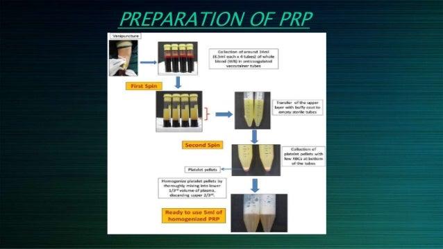 PRP Platelet Rich Plasma Separation Centrifuge - 2M