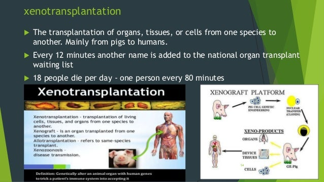 xenotransplantation essay