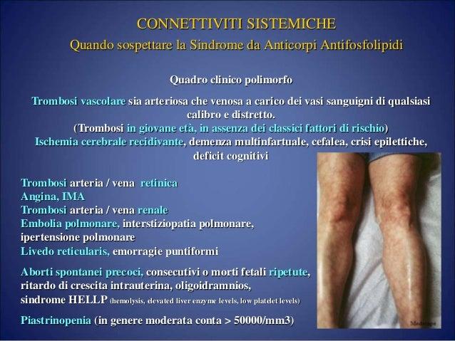 Trattamento di gambe di asterisco di vena