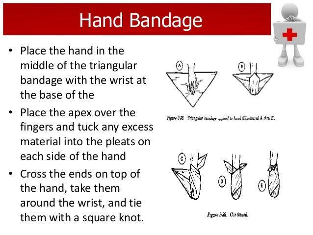 first aid nbde part 2 pdf