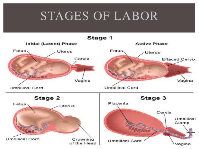 Stages Of Labor - 1000do