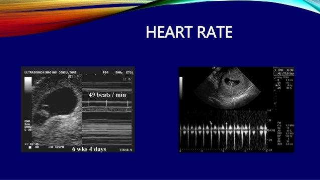Crl pregnancy dating by ultrasound 1