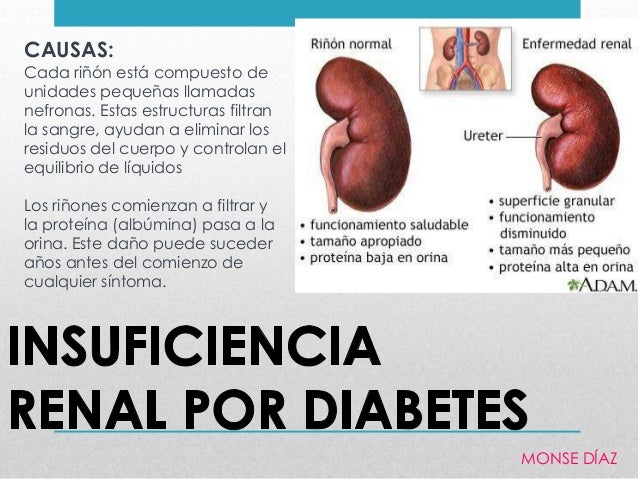 Los ri ones la diabetes e insuficiencia renal por diabetes for Alimentos prohibidos para insuficiencia renal