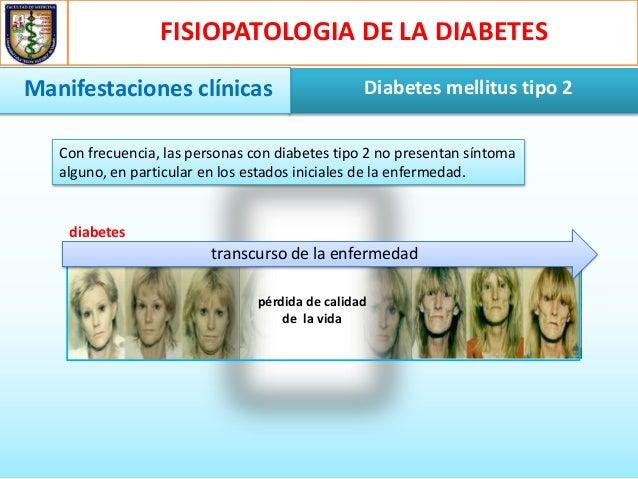 Fisiopatologia de la diabetes mellitus tipo 2