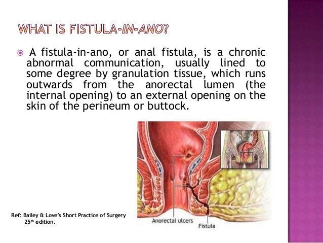 Anal stenosis symptoms