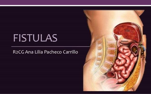 FISTULAS R2CG Ana Lilia Pacheco Carrillo
