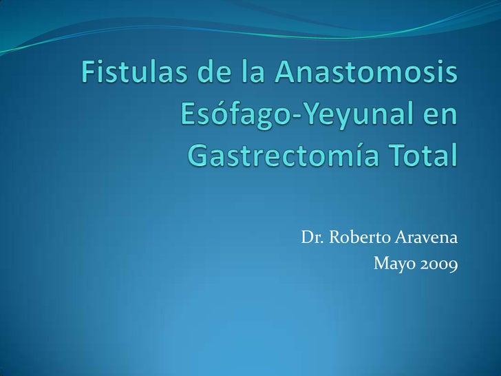 Fistulas de la Anastomosis Esófago-Yeyunal en Gastrectomía Total<br />Dr. Roberto Aravena<br />Mayo 2009<br />
