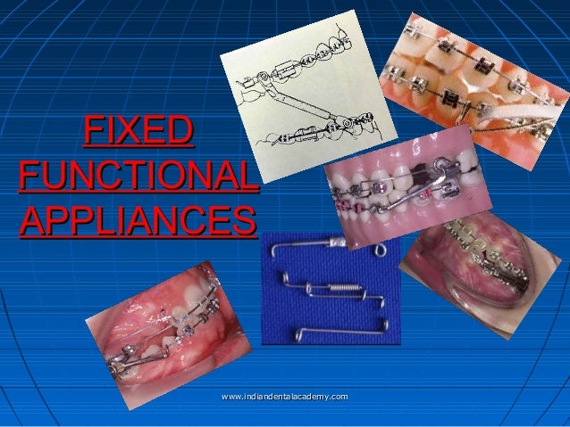 Fixed functional appliances / /certified fixed orthodontic courses by Indian dental academy