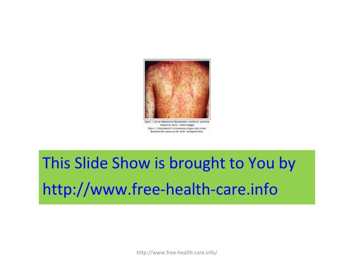 <ul><li>This Slide Show is brought to You by  </li></ul><ul><li>http://www.free-health-care.info </li></ul>http://www.free...