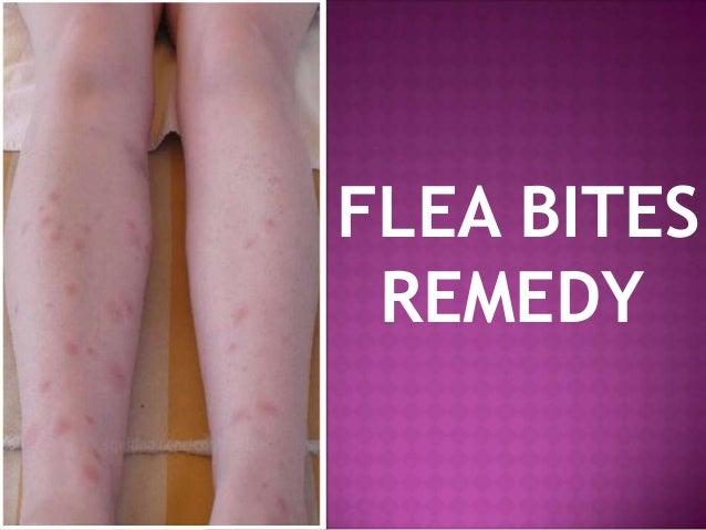 Flea bites vs. bed bug bites, difference in symptoms and ...