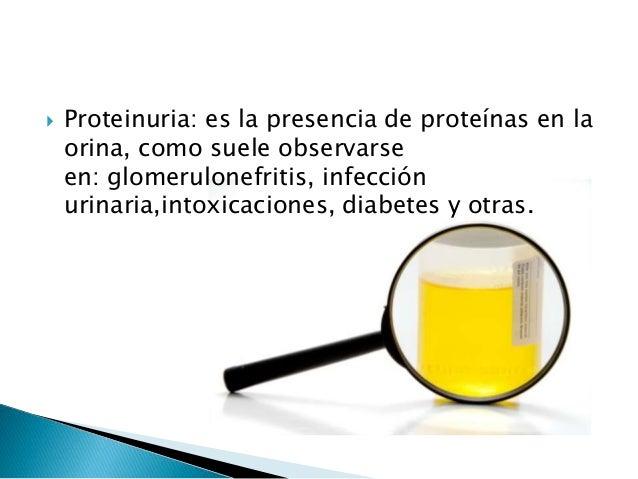 17 cetosteroides urinarios valores normales