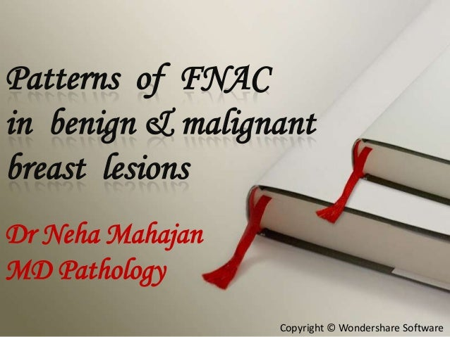 Patterns of FNAC in benign & malignant breast lesions Dr Neha Mahajan MD Pathology Copyright © Wondershare Software