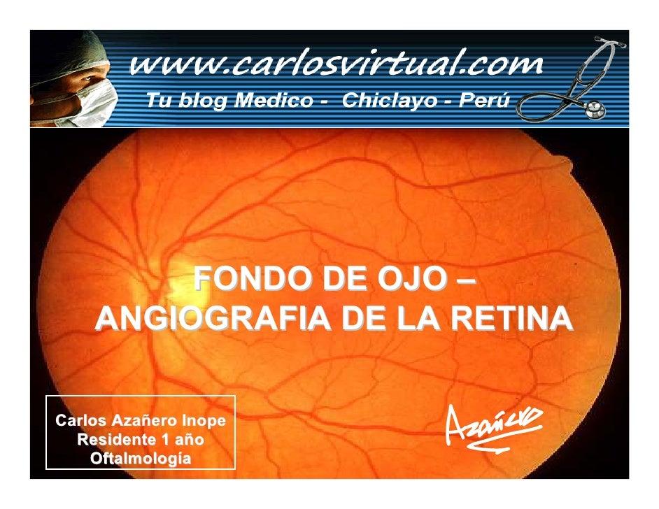 FONDO DE OJO –     ANGIOGRAFIA DE LA RETINA  Carlos Azañero Inope   Residente 1 año     Oftalmología