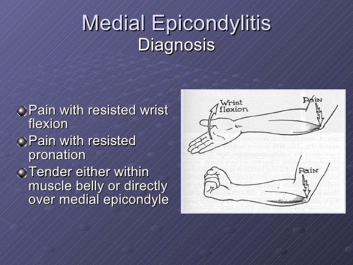 medial epicondylitis steroid injection