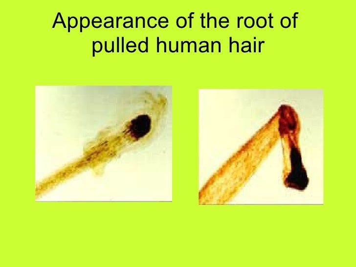 Forensics Hair Fiber And Paints