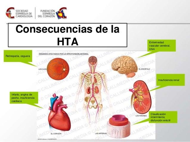 ¿Por qué la hipertensión arterial puede dañar el corazón?