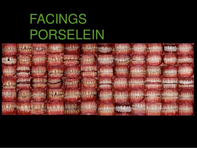 Foto's facings en kronen Willem Polet, www.stralendwittelach.nl