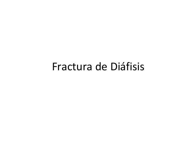 Fractura de Diáfisis