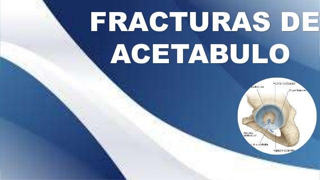 FRACTURAS DE ACETABULO