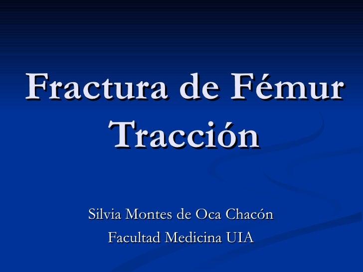 Fractura de Fémur     Tracción   Silvia Montes de Oca Chacón       Facultad Medicina UIA
