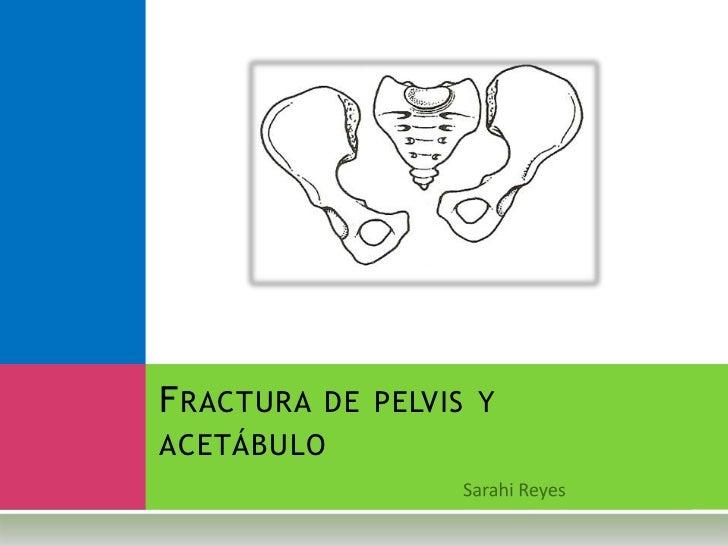 F RACTURA DE PELVIS YACETÁBULO