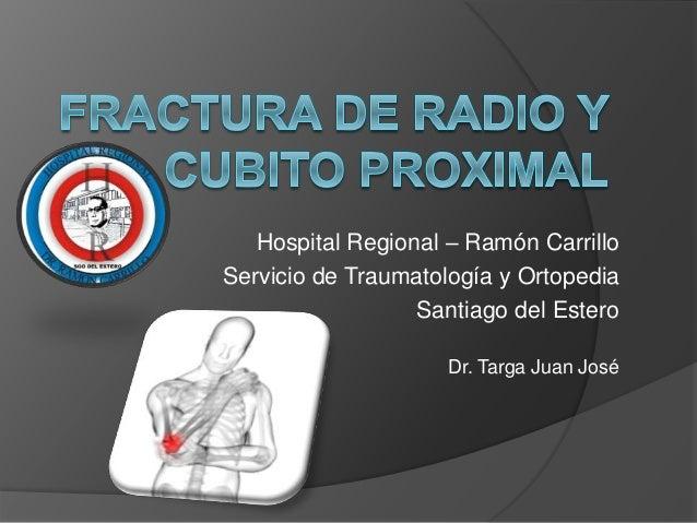 fractura radio: