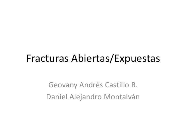 Fracturas Abiertas/Expuestas Geovany Andrés Castillo R. Daniel Alejandro Montalván