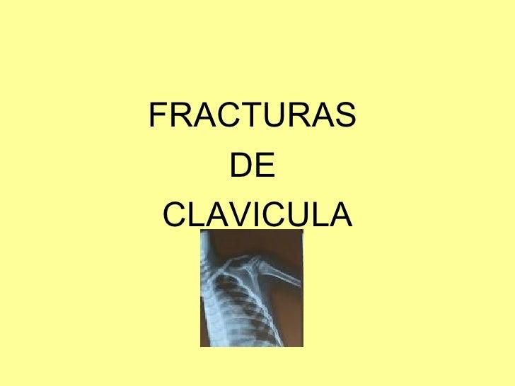 <ul><li>FRACTURAS  </li></ul><ul><li>DE  </li></ul><ul><li>CLAVICULA </li></ul>