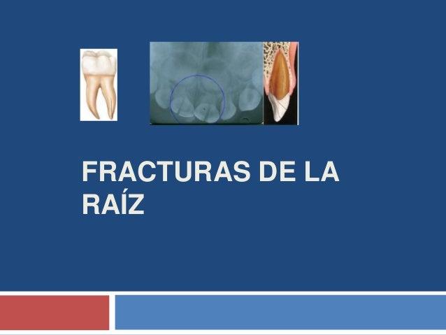 FRACTURAS DE LA RAÍZ