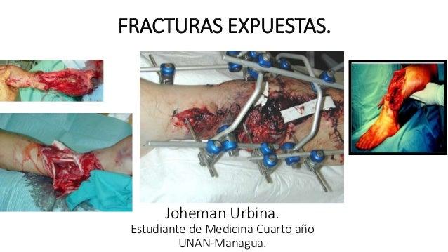 FRACTURAS EXPUESTAS.  Joheman Urbina.  Estudiante de Medicina Cuarto año  UNAN-Managua.