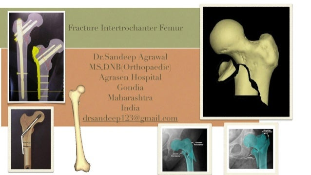 Gondia India  city photo : ... intertrochanter femur dr.sandeep agrawal agrasen hospital gondia india