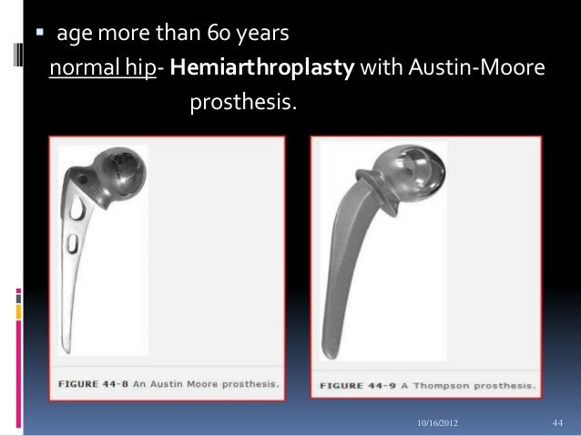 moore prothesis Start studying chapter 17 review learn vocabulary, terms, and more with flashcards, games an austin moore prothesis is used at which joint hip.