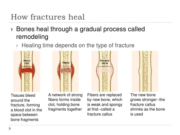 healing process of a bone fracture The natural process of healing a fracture starts when the injured bone and surrounding tissues bleed, forming a fracture hematoma the blood coagulates to form a.
