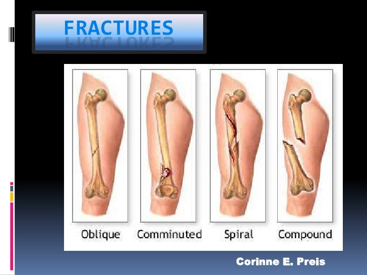 Fractures<br />Corinne E. Preis<br />Corinne E. Preis<br />