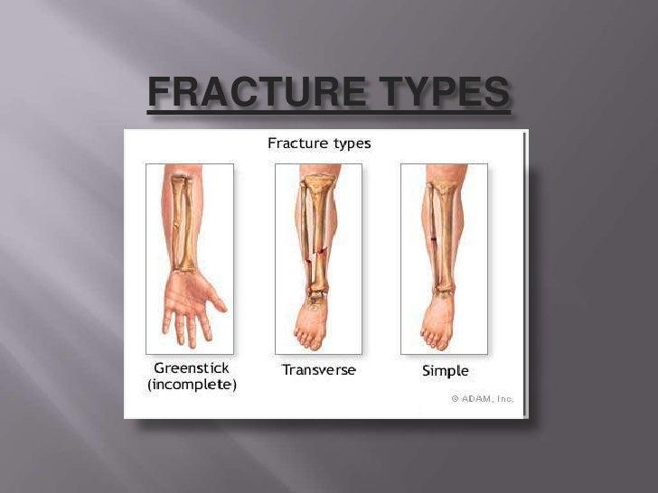 FRACTURE TYPES<br />
