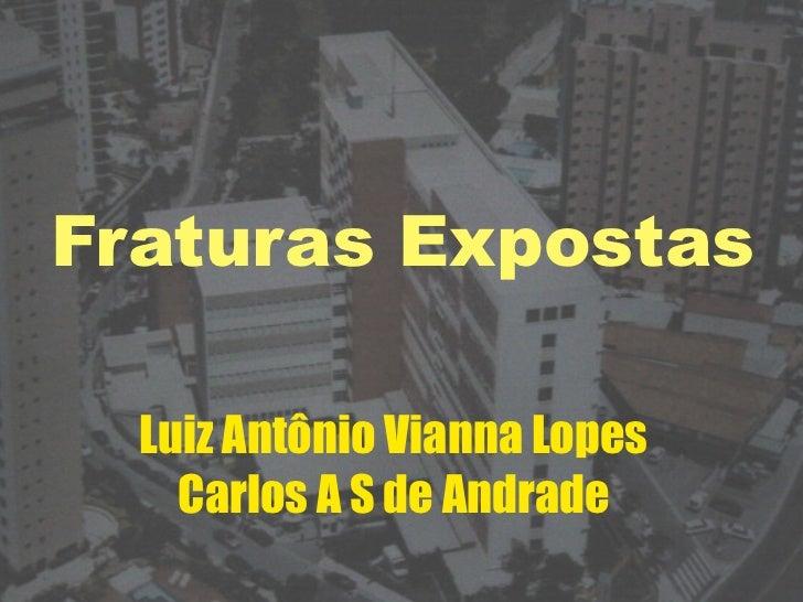 Fraturas Expostas  Luiz Antônio Vianna Lopes    Carlos A S de Andrade