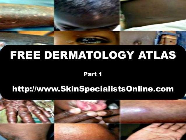 FREE DERMATOLOGY ATLASPart 1http://www.SkinSpecialistsOnline.com