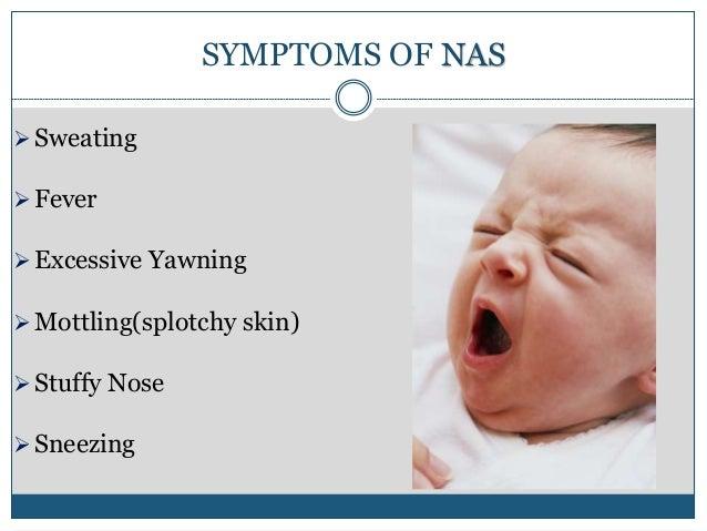 Neonatal Herpes Simplex Virus Infections