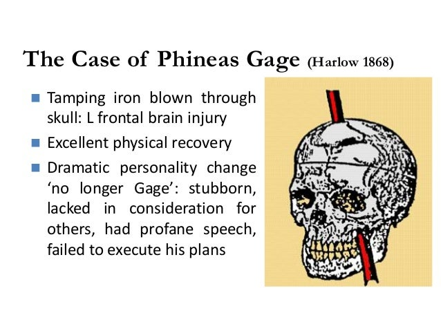 the case of phineas gage In time, gage became the most famous patient in the annals of neuroscience, because his case was the first to suggest a link between brain trauma and personality change.