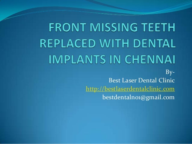 Front missing teeth replaced with dental implants in chennai