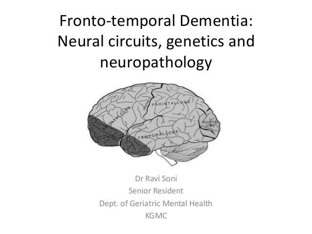 Fronto-temporal Dementia: Neural circuits, genetics and neuropathology Dr Ravi Soni Senior Resident Dept. of Geriatric Men...