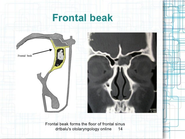 Frontal Beak Frontal Beakfrontal Beak Forms