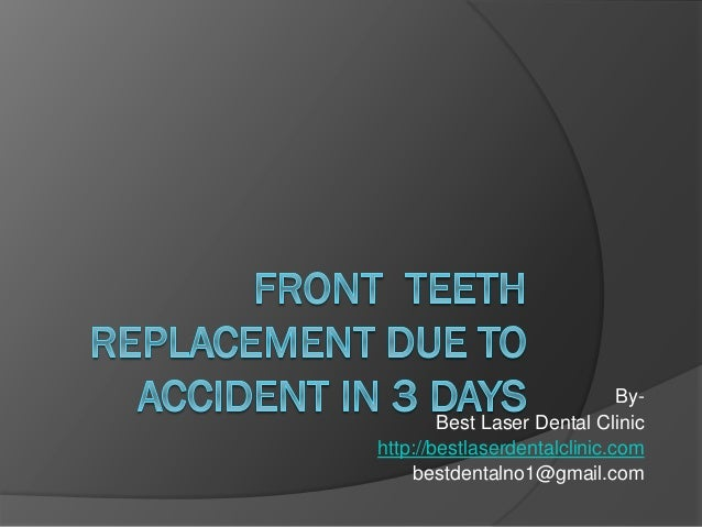 Front teeth extraction and immediate implant placement in asia