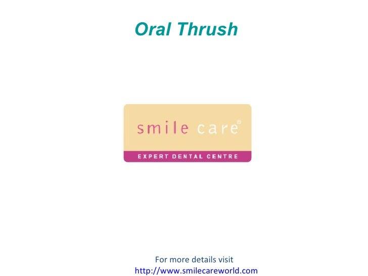 Oral Thrush For more details visit  http://www.smilecareworld.com