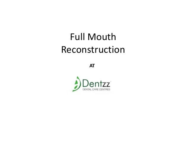 Full Mouth Reconstruction AT