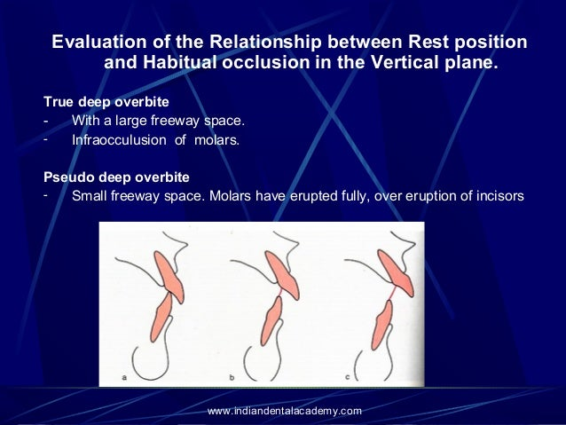 relationship between dental occlusion and posture