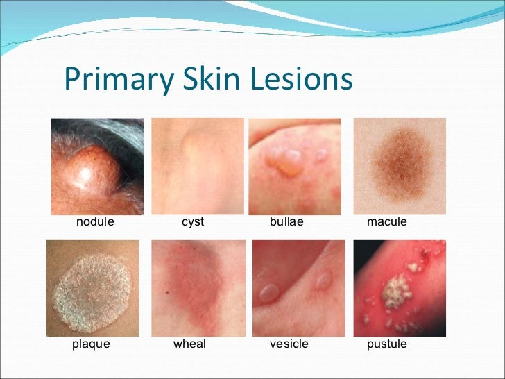 Blistering (bullous) disorders - an overview - UK