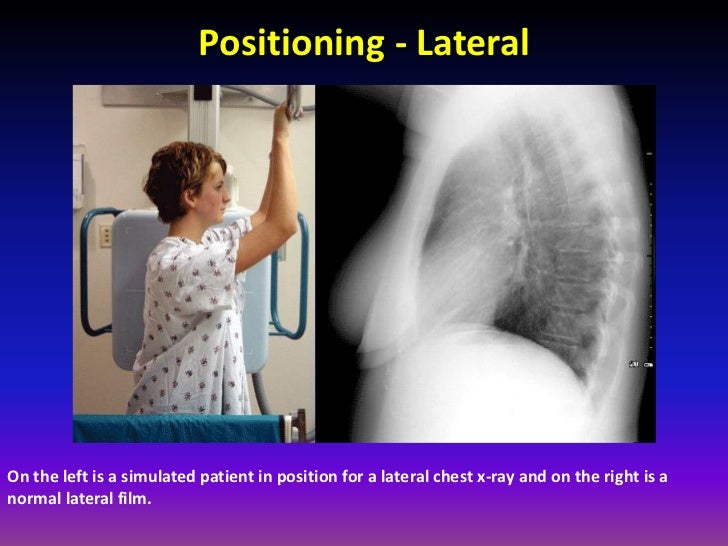 free radiographic positioning pdf to word